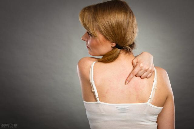 荨麻疹图片和症状,荨麻疹的症状和诊治