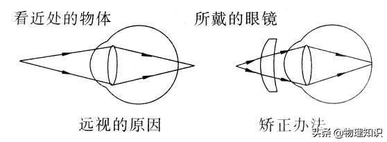 八年级物理上册知识点:眼睛和眼镜