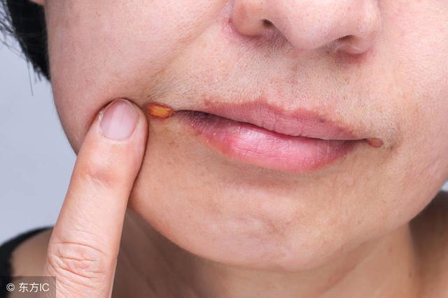 嘴角烂了怎么快速好,一个效果上佳的小偏方,专治烂嘴角,15分钟就可以做好!
