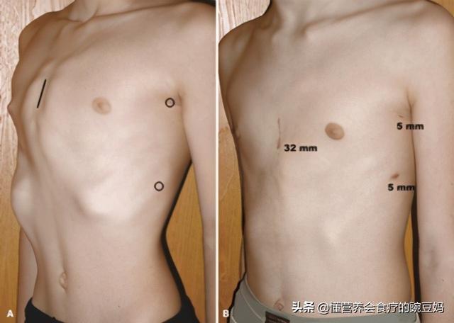 鸡胸图片,村里的孩子诊断为鸡胸,是缺钙引起的吗?如何预防孩子鸡胸?