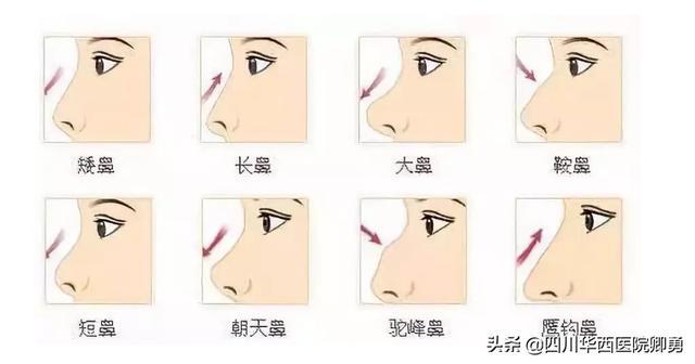 怎么做鼻部整形,鼻部整形手术有哪些?