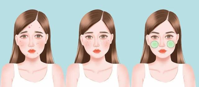 脸上长斑是因为什么原因引起的,脸部为什么会长斑?如何预防你知道吗?