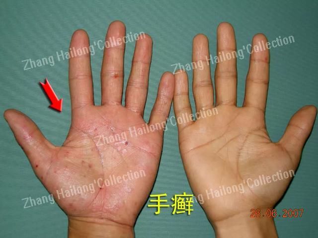 手癣图片,玉手变得糙痒干,手癣真烦人