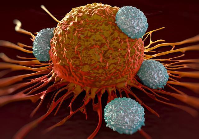 让癌细胞铁死亡,加拿大发现癌细胞致命弱点,有助开发新疗法