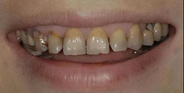 牙齿为什么越来越黄?常见的三种美白方式相识一下3430 作者:admin 帖子ID:23448