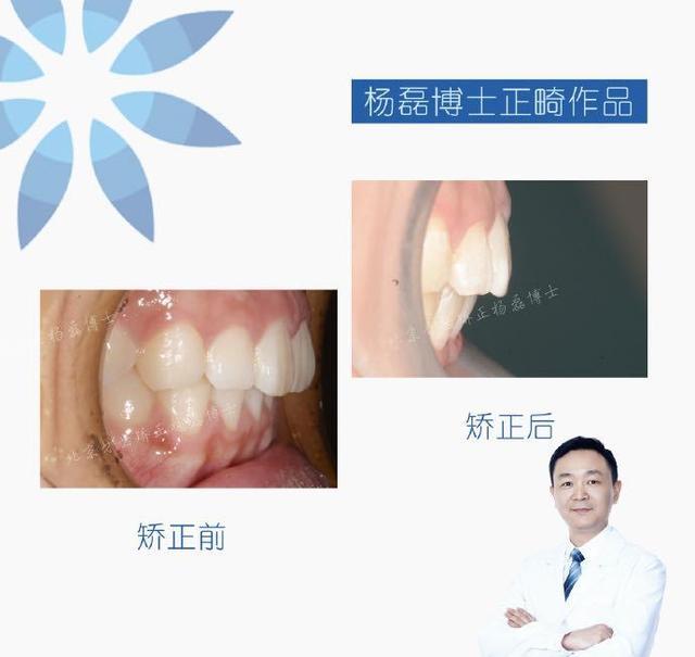 北京正畸 利用隐适美解决磨牙缺失,避免种植正畸案例