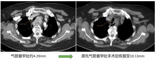 75岁老太太胸闷气短以为是冠心病,结果却是甲状腺肿惹的祸