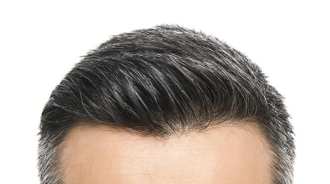 简单实用!只需3招白发变黑发