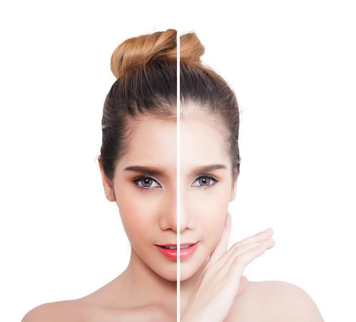美白全身皮肤最有效(用什么可以美白)插图(4)